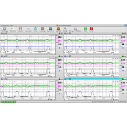 Logiciel PC MFM-CNS Lite pour cardiotocographe Edan F3